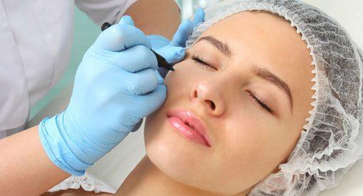 Dermal Fillers - Hamilton Face Clinic - Dublin, Belfast and