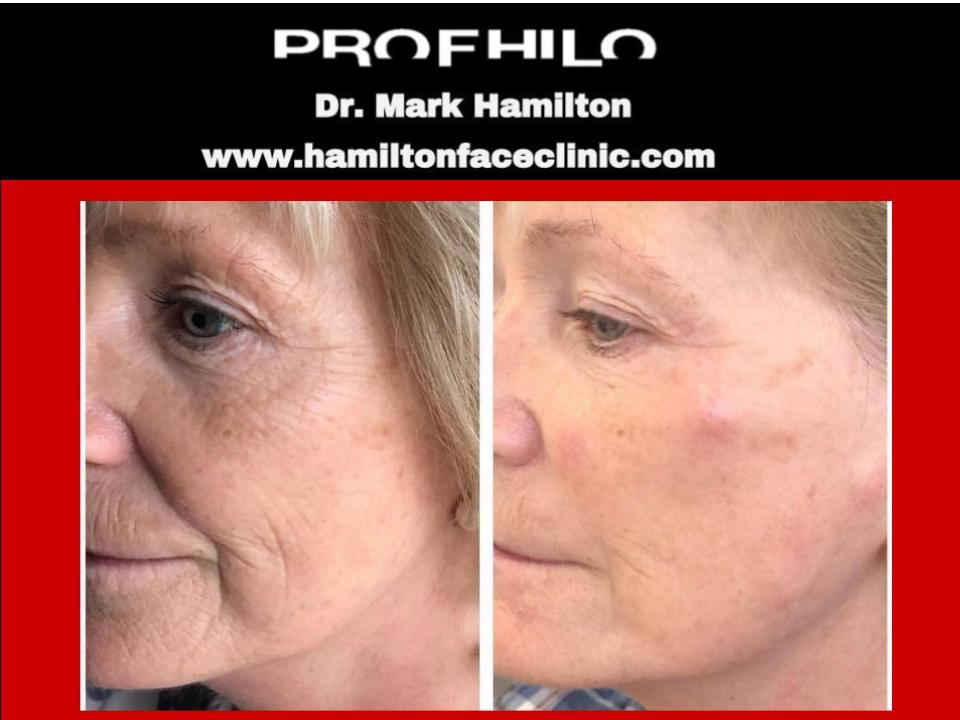 Face Profhilo 2 - Hamilton Face Clinic