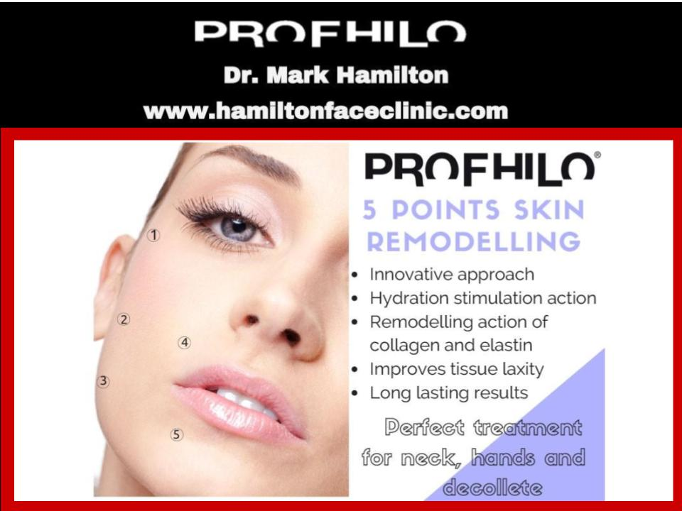 Profhilo 5 Injection Points - Hamilton Face Clinic