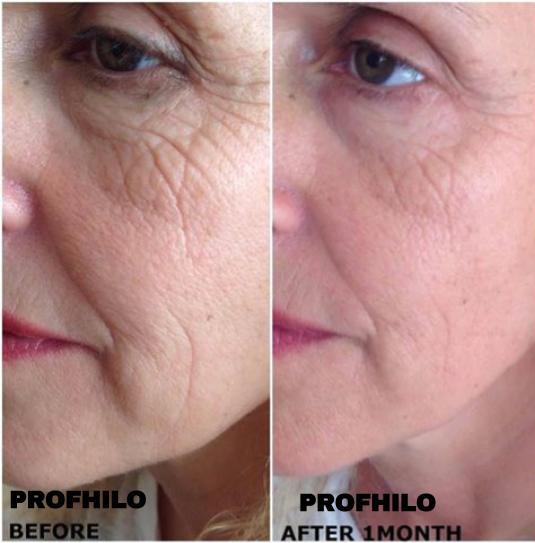 Profhilo Skin Booster - Hamilton Face Clinic