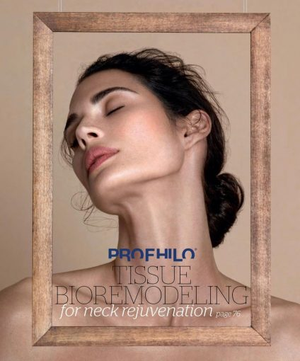 Profhilo for Neck rejuvenation