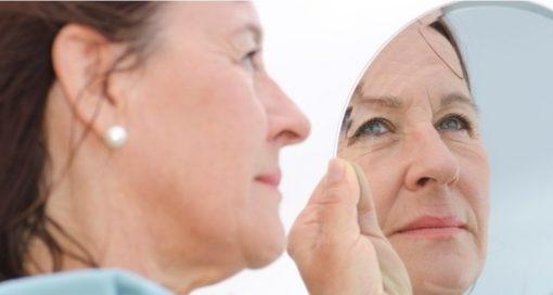Botox for older women