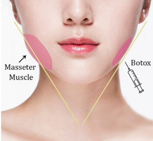 Botox for Jaw Clenching